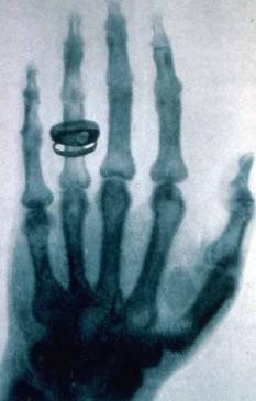 Radiografie cu raze X a mâinii lui Albert von Kölliker - foto: ro.wikipedia.org