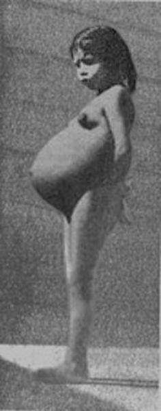 Lina Medina (n. 27 septembrie 1933 la Ticrapo, regiunea Huancavelica, Peru) este o femeie din Peru cunoscută pentru faptul că a fost cea mai precoce mamă din lume. A născut la vârsta incredibilă de 5 ani, 7 luni și 17 zile - in imagine, Lina Medina cu o sarcină de 7½ luni - foto: ro.wikipedia.org
