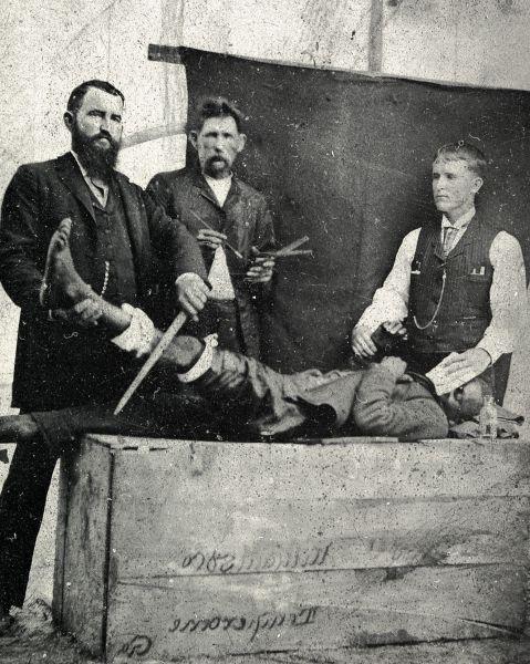 30 martie 1842: Anestezia a fost utilizată pentru prima dată, într-o intervenție a chirurgului american dr. Crawford Long.- foto: lwinpyin.com